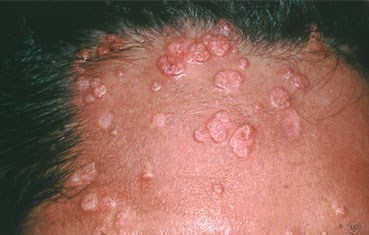 molluscum-contagiosum-symptoms_HIV.jpg